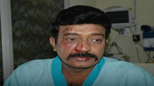 Telugu actor Rajasekhar suffers minor injuries in road accident