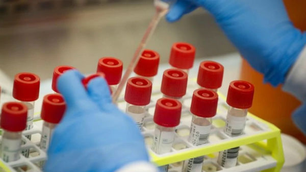 India needs to urgently step up coronavirus testing say experts