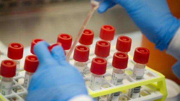 55 plus with even slightest discomfort? Karnataka govt wants to do coronavirus test