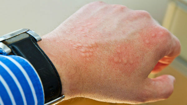 From 'COVID Toes' to Hives: 5 signs on your skin that could mean you have Coronavirus