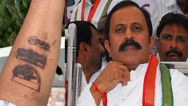 Cong leader says Covid stamp at airport caused skin burns; Puri responds