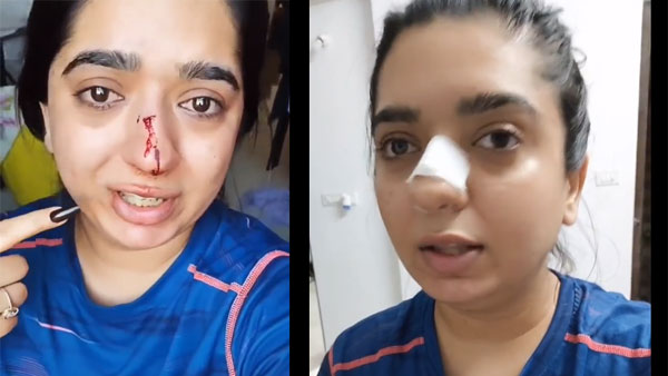 'She threw chappals at me': Zomato delivery man denies allegation of attacking model in Bengaluru