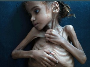 70 Yemenis Are Hungry 250 000 Face Catastrophe Un