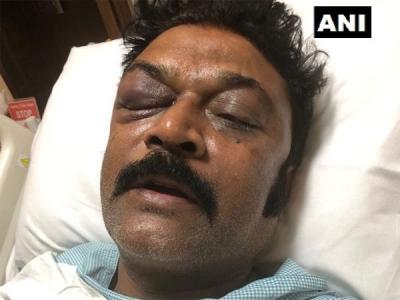 FIR against Congress MLA JN Ganesh